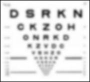 Eye-Injury-vision